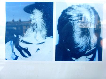 hair_loss_01